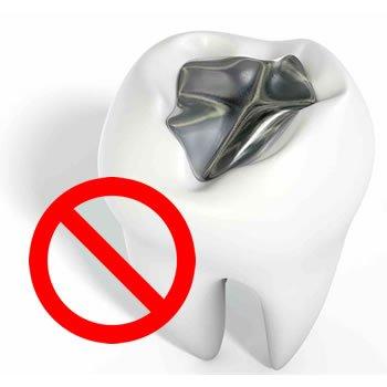 zubna plomba