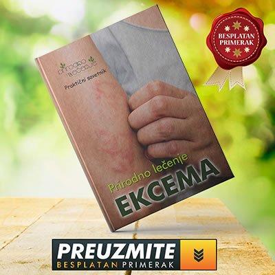 e-knjiga-prirodno-lecenje-ekcema