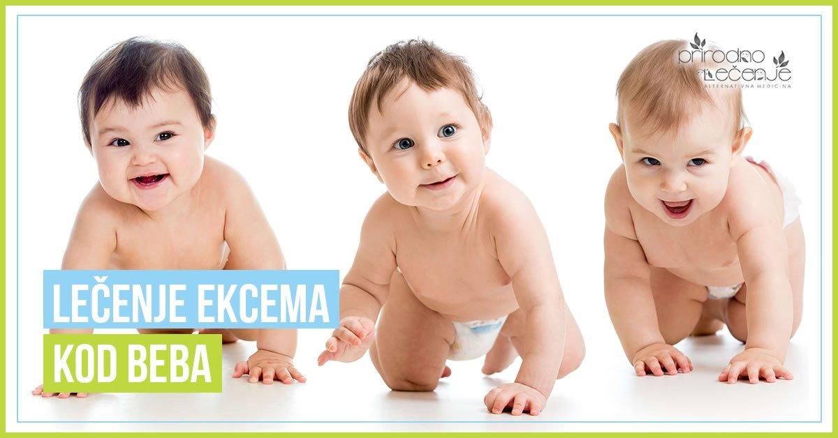 lecenje-ekcema-kod-beba