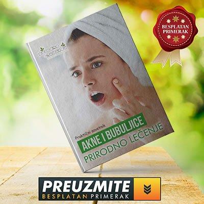 e-knjiga-za-akne-bubuljice-baner