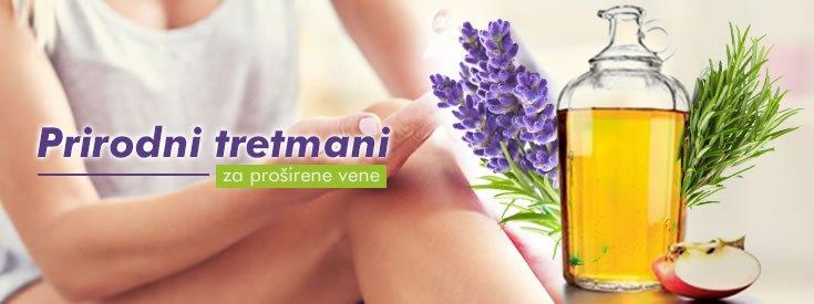 prirodni-tretmani-za-prosirene-vene
