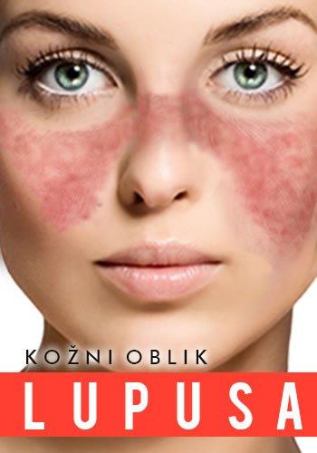 kozni-lupus