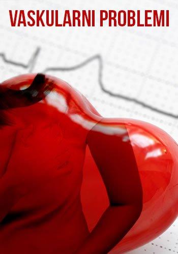 vaskularni-problemi-lupusa