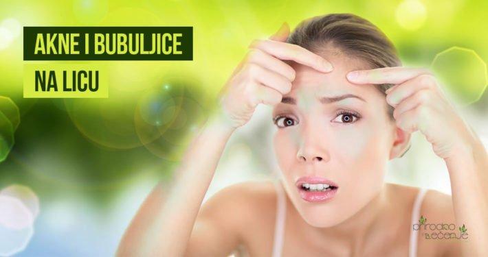 Akne i bubuljice na licu